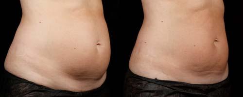دستگاه های لاغری چگونه به کاهش وزن کمک می کنند